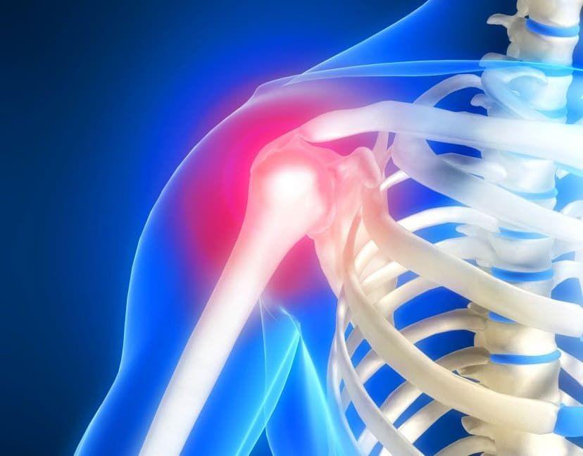 Причины развития каменного бурсита плечевого сустава