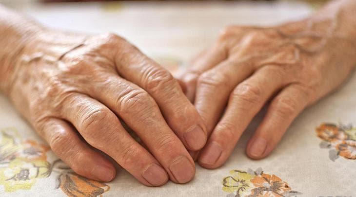 Лечим артрит пальцев рук народными средствами