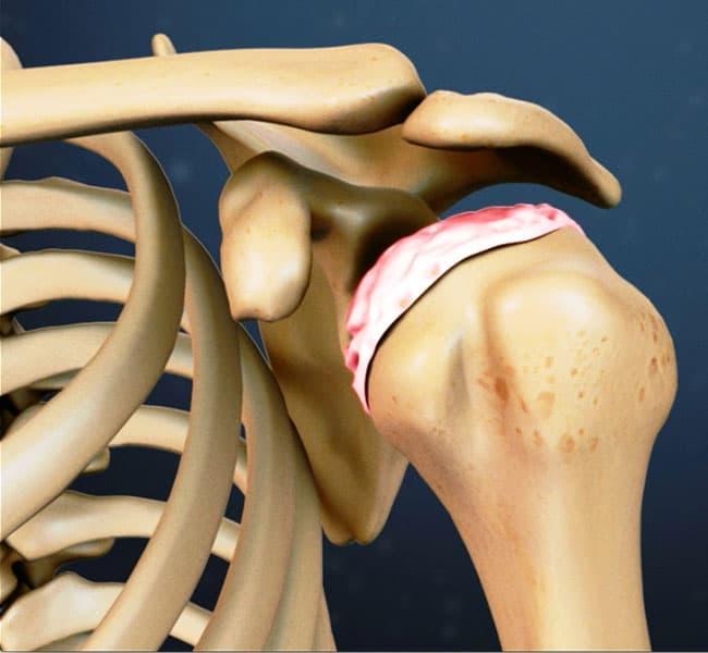 Остеоартроз плечевого сустава 1,2,3 степени: признаки, лечение