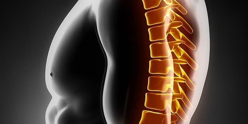 Лечение при остеохондрозе грудного отдела позвоночника