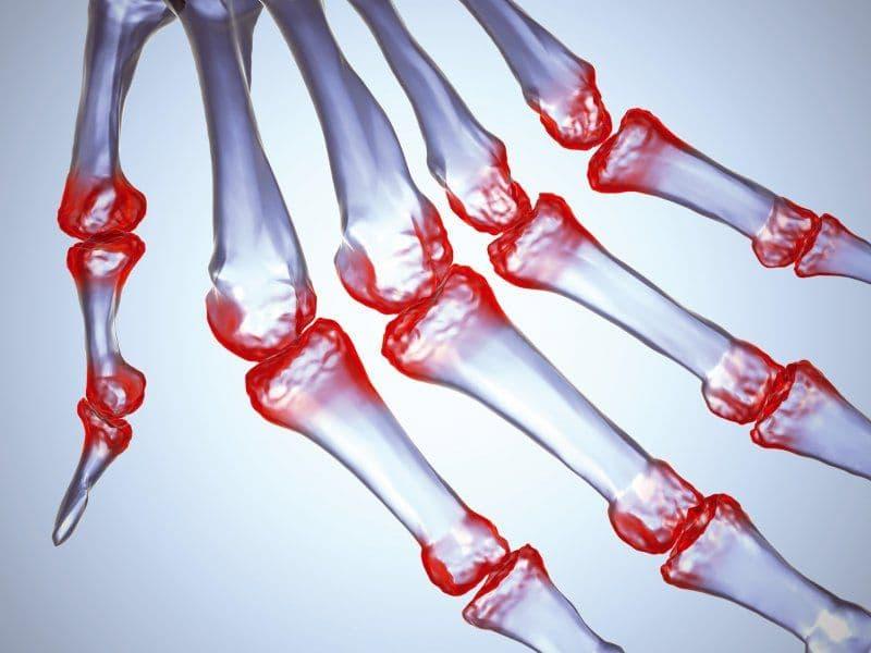 Ревматоидный артроз: симптомы и лечение, диагностика коленного сустава, что это такое, ревматический артроз