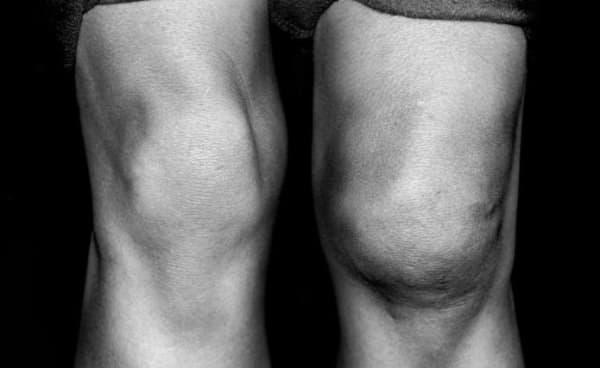 Синовит коленного сустава лечение