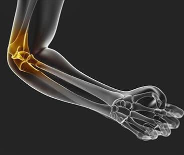 Что такое синовит локтевого сустава