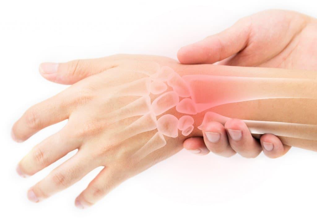 Синовит лучезапястного сустава виды диагностика и лечение