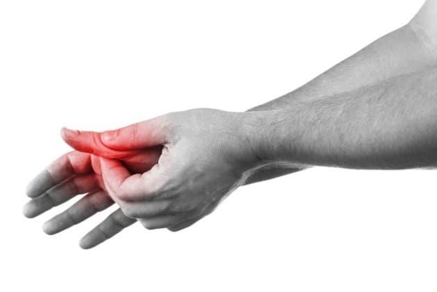Лигаментит сустава большого пальца руки у взрослых и детей