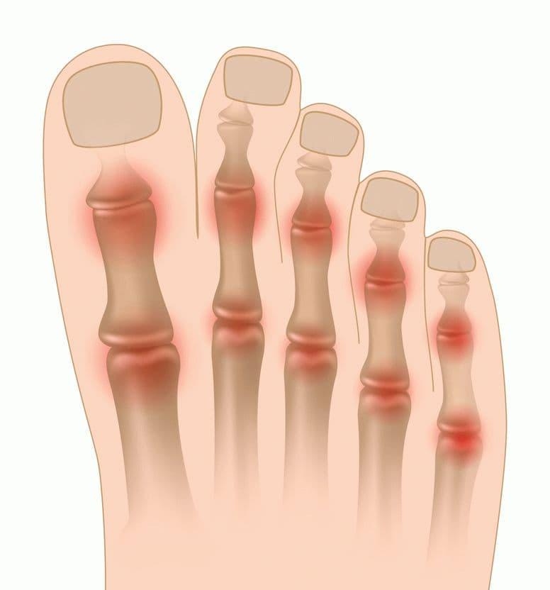 Артрит пальцев рук: симптомы и лечение